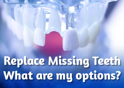Michael Colleran DDS lets you know your options when it comes to replacing a tooth